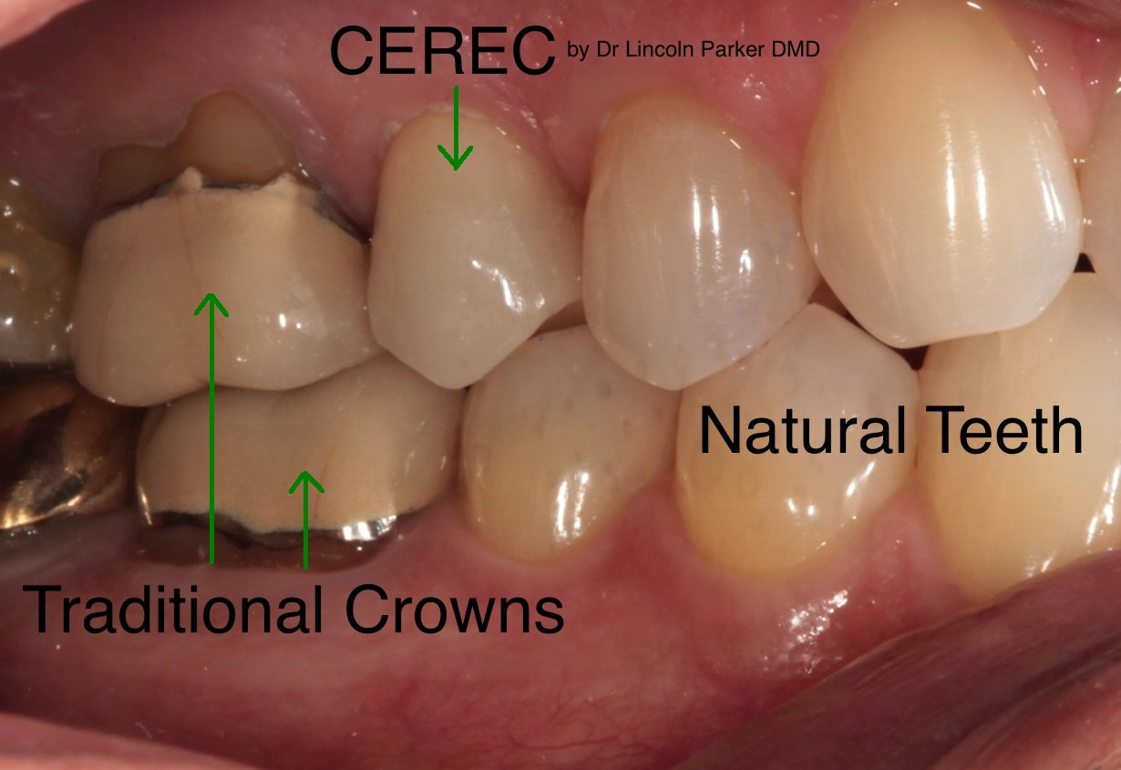 cerec kroon en traditionele kroon in gebit