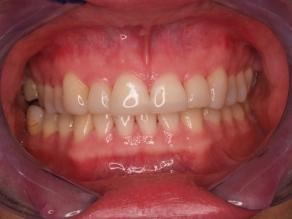 gebit na een behandeling tegen slijtage