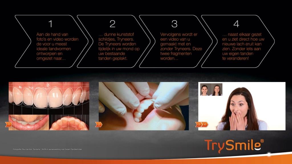 stappenplan trysmile behandeling