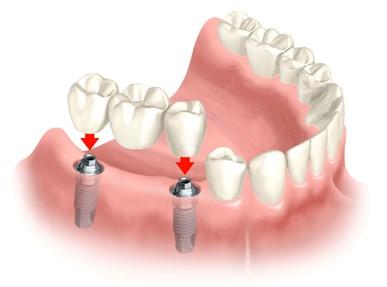 Brug op implantaat