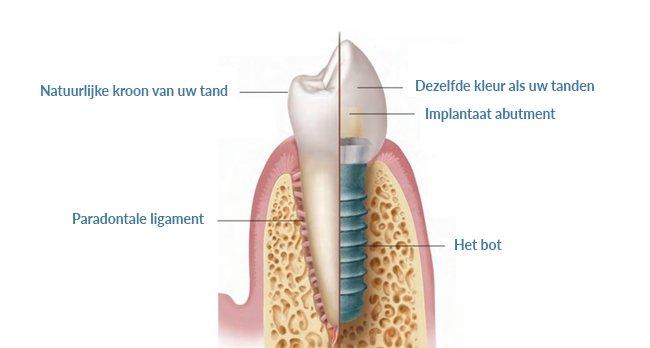 Uitleg implantologie