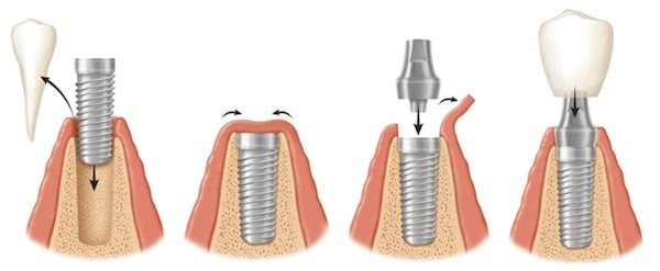 Kroon op implantaten